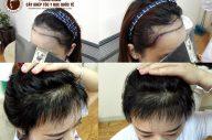 Địa chỉ cấy tóc cho nữ uy tín, an toàn