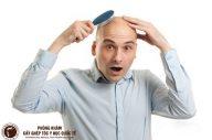 Khắc phục tình trạng rụng tóc đỉnh đầu