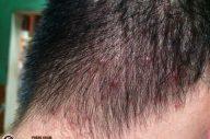 Các vấn đề da đầu thường gặp mà bạn không thể bỏ qua