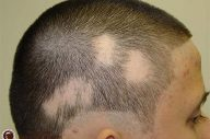 Rụng tóc mảng: Nguyên nhân và cách điều trị
