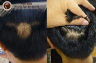 Làm thế nào để tóc mọc trên vùng da đầu bị sẹo?