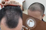 Cấy tóc nam đảm bảo hiệu quả, an toàn có giá bao nhiêu?