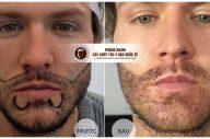 Tìm hiểu về cấy râu thẩm mỹ – nâng tầm vẻ nam tính cho đàn ông
