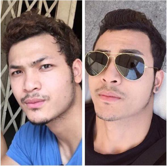 Hình ảnh trước và sau khi Cấy Lông Mày bằng phương pháp HAT