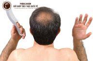 Cấy tóc có thực sự hiệu quả? Lời những người trong cuộc