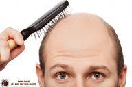 Căn nguyên và biện pháp chữa hói đầu ở nam giới