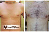 Cấy lông ngực tự thân có đau không?