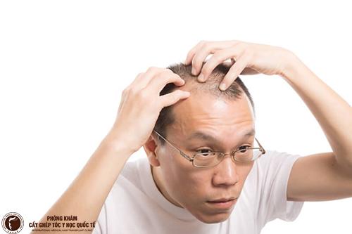 Top 5 cơ sở trị rụng tóc hai bên trán tốt nhất hiện nay