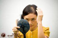 Giải tỏa nỗi lo hói đầu ở phụ nữ