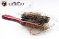 Phương pháp điều trị rụng tóc nội tiết hiệu quả nhất hiện nay