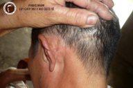 Chữa sẹo da đầu bẩm sinh bằng cách nào?