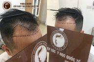 Chi phí cấy tóc tự thân đường chữ m