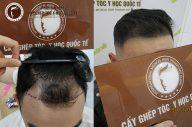 Phòng khám Cấy ghép tóc Y học Quốc tế có lừa đảo không?