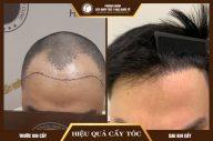 Bất lực trước hiện tượng hói đầu, đâu là giải pháp tối ưu?