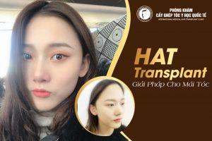 Chị Vũ Ngọc Bích, 26 tuổi, Hà Nội đã sở hữu đường chân tóc hài hòa với gương mặt sau 6 tháng cấy tóc