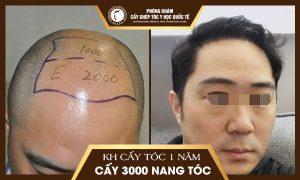 Anh Dương Anh Đức, 35 tuổi, Bắc Giang đã trị hói đầu cách đây 1 năm