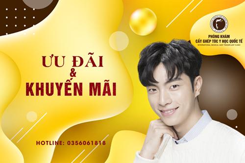 Nhận ưu đãi cấy tóc tại 38 Nguyễn Du, gọi ngay 035 606 1818