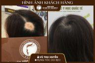 Tóc cấy trên sẹo da đầu có phát triển bình thường không?