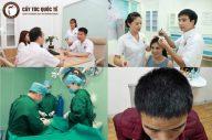 Tìm Hiểu Dịch Vụ Cấy Tóc Tự Thân Trị Hói Đầu