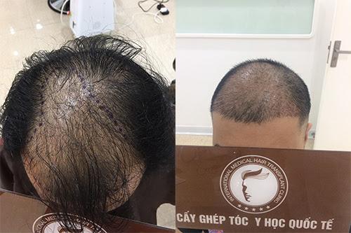 """""""Bóc mẽ"""" những sai lầm tai hại trong điều trị tóc thưa đỉnh đầu"""