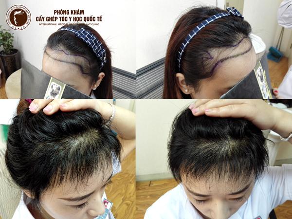 Hình ảnh khách hàng sau khi điều chỉnh đường chân tóc