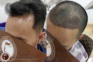 Cấy tóc vùng trán cải thiện đường chân tóc thưa