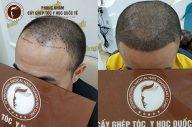 Có nên trị hói đầu chữ M bằng công nghệ cấy tóc tự thân?