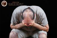 Rụng tóc ở nam giới: nguyên nhân và cách khắc phục