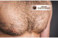 Địa chỉ cấy lông ngực an toàn cho nam giới