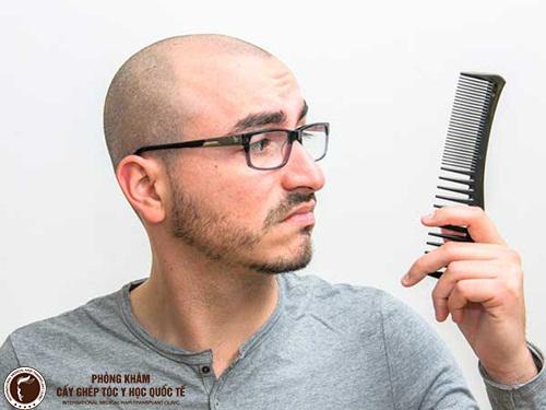 Thuốc chữa rụng tóc cho đàn ông có hiệu quả không?
