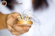 Rụng tóc mái: Nguyên nhân và cách khắc phục