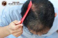 Nguyên nhân gây tóc thưa mỏng và cách khắc phục hiệu quả