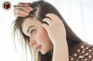 """Mách bạn cách trị rụng tóc và gàu """"dễ như ăn kẹo"""""""