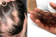 Mách bạn một số mẹo trị rụng tóc nhiều hiệu quả