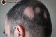 Rụng tóc có sẹo – bệnh lý nguy hiểm phá hoại mái tóc