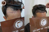 Cấy tóc đường chữ M cho phái mạnh thêm tự tin