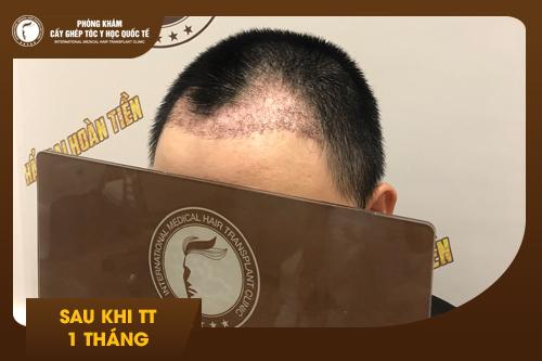 Hình ảnh Cấy tóc tự thân sau 01 tháng