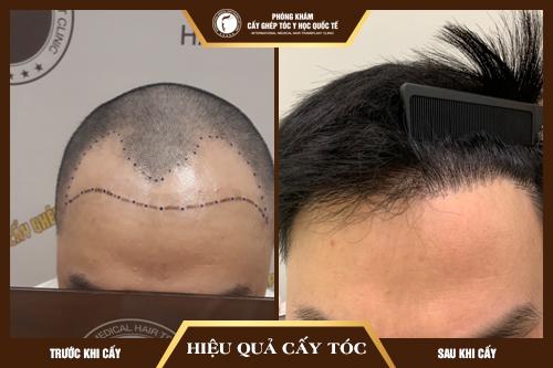 Hiệu quả Cấy tóc tự thân Fue sau 06 tháng